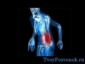 Как происходит срыв спины