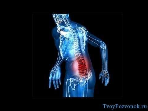 Как лечить если сорвал спину в районе поясницы
