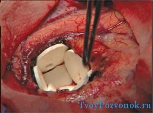 Оперативное-лечение-рака