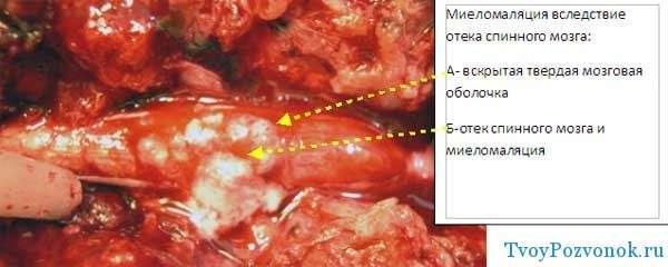 Как выглядит отек спинного мозга