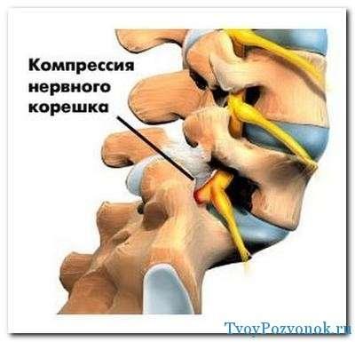 Лечебная гимнастика при шейном остеохондрозе грудного отдела