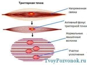 Что такое триггерные точки в организме