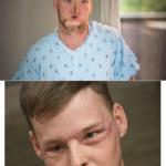 До и после трансплантации