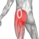 Боль в ягодице - воспаление седалищного нерва