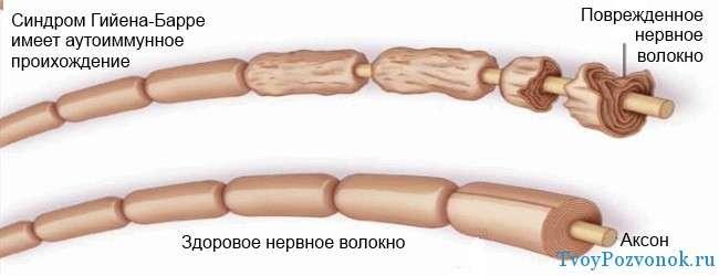 нервные волокна при синдроме Гийена - Барре