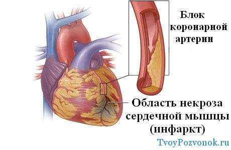 Как происходит инфаркт