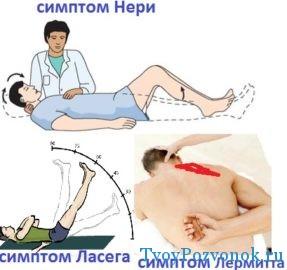 симптомы позвоночных болезней