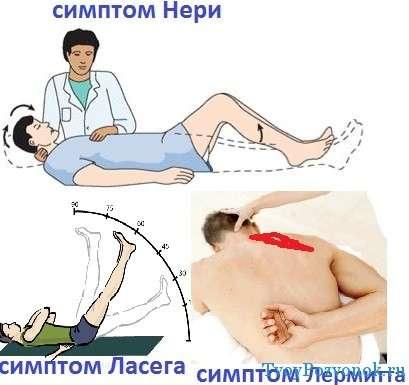 Синдром лермитта остеохондроз 122