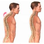 Гиперкифоз: симптомы и лечение заболевания