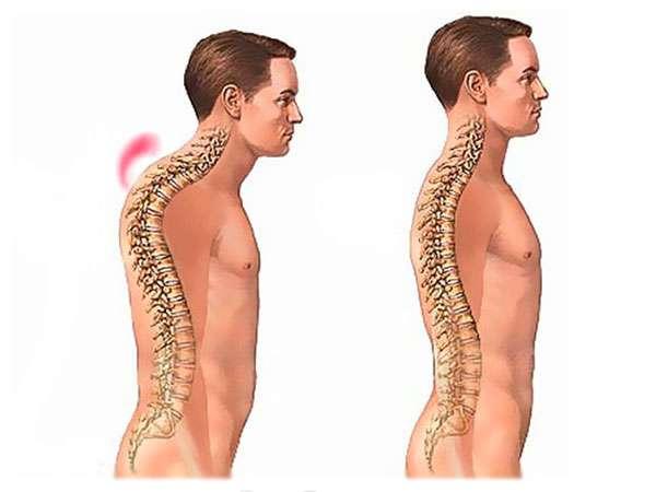 гиперкифоз грудного отдела