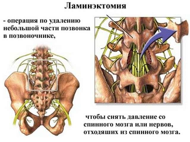 Синдром фиксированного спинного мозга: варианты лечения