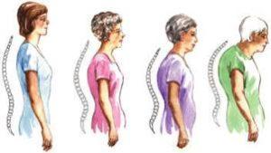 остеопороз - причина кифоза