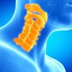 Кифоз шейного отдела позвоночника: причины и лечение заболевания
