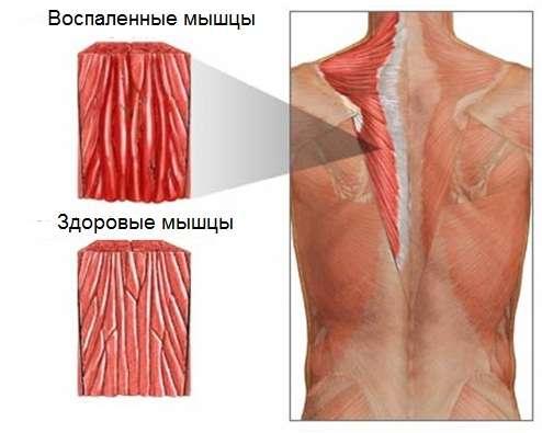 воспаленная мышечная ткань