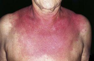 Дерматомиозит, кожные симптомы