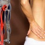 защемление бедренного нерва