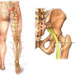 локализация седалищного нерва
