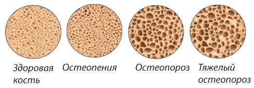 Различия остеопении и остеопроза