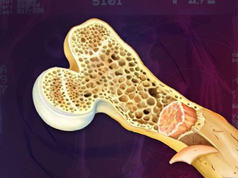 Хондросаркома первичная и вторичная, виды и симптомы. Мезенхимальная и дедифференцированная форма. Особенность формирования метастазов, диагностика и лечение. Хондросаркома - не игнорируйте недомогания Хондросаркома - злокачественное заболевания кости <p>Хондросаркома представляет собой злокачественное заболевание кости, развивающееся из хрящевой ткани. Самой частой локализацией опухоли являются трубчатые кости, реже образование формируется в грудине и других плоских элементах опорно-двигательного аппарата. Различают первичные и вторичные хондросаркомы. Первичная опухоль развивается самостоятельно, вторичная формируется в процессе перерождения доброкачественных новообразований. Мужчины болеют в два раза чаще женщин, возрастные предпочтения патологии - люди средних лет и пожилое население. </p> <h2>Классификация болезни </h2> <p>Всемирная организация здравоохранения в 1994 году приняла следующую классификацию хондросарком: </p> <ol><li>Обычная хондросакркома, которая делится на первичную и вторичную. Первичная опухоль характеризуется более агрессивным течением. </li> <li>Дедифференцированнная. Наиболее злокачественный тип болезни, чаще обнаруживается в области диафиза или метафиза трубчатых костей. </li> <li>Юкстокортикальная (периостальная). Этот вид характеризуется полным отсутствием прямого опухолевого остеогенеза. Среди всех случаев заболевания данный тип считается редким, на его долю приходится около 2%.</li> <li>Мезенхимальная хондросаркома. Особый тип болезни, отличающийся от подобных по рентгенологическим и морфологическим признакам. </li> <li>Светлоклеточная. Выявляют в основном в трубчатых костях, в плоских – крайне редко. Характеризуется медленным течением. </li> <li>Злокачественная хондробластома. Страдает эпифиз плечевой кости, бедренной, другие трубчатые кости. В плоских костях выявляется редко – преимущественно в лицевых и височных. </li></ol> <h2>Клинические проявления</h2> <p>Высокодифференцированные хондросаркомы не отличаются яркими проявлениями в 