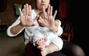 Патологии пальцев