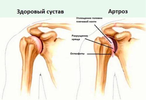 Коксартроз тазобедренного сустава симптомы и лечение фото
