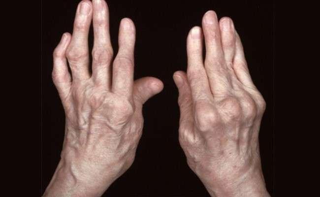 Полиартрит пальцев 2