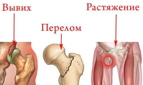 Травмы