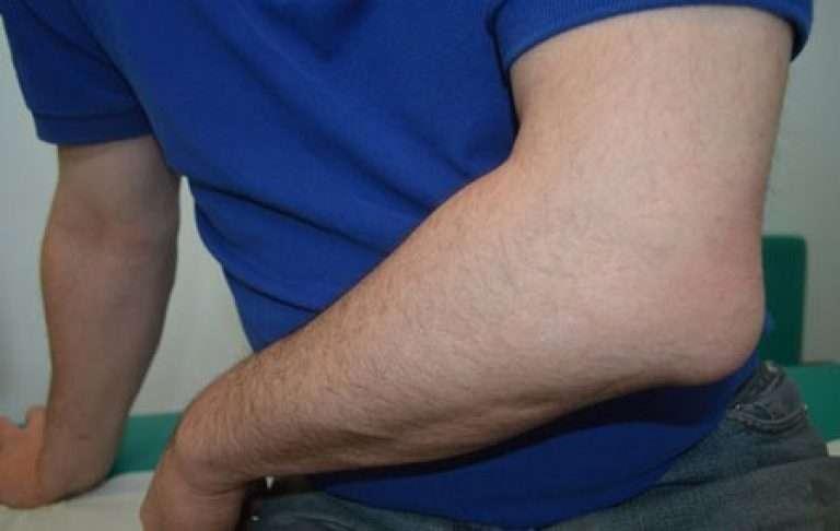 Бурсит локтевого сустава: диагностика и лечение