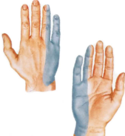 Онемение 3 пальцев