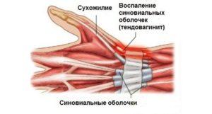 Сухожилия кисти