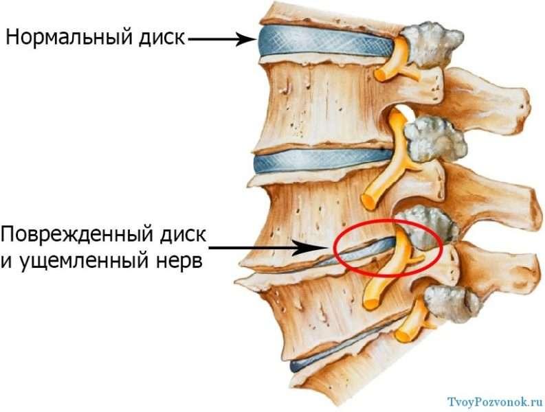 Нормальный и поврежденный диск при остеоходнрозе
