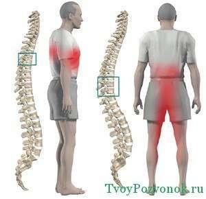 Расположение очагов боли при остеохондрозе грудного отдела позвоночника