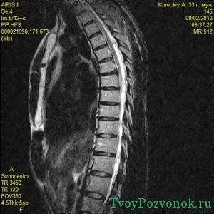 Снимок магнитно резонансной томографии