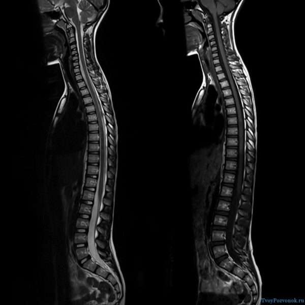 Пример снимка МРТ позвоночника