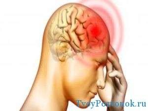 Головная боль при развитии грыжи шейного отдела