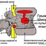 Схематичное описание грыжи Шморля