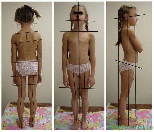 Виды искривления позвоночника у ребенка