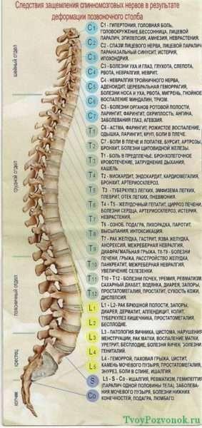Следствия защемления спинномозговых нервов