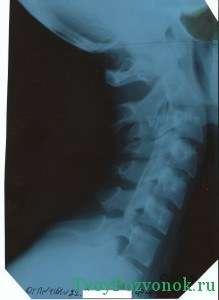 рентген снимок шейного отдела