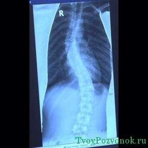 МРТ снимок с ярко выраженным сколиозом позвоночника