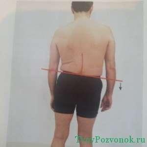 Сколиоз в результате избыточного веса