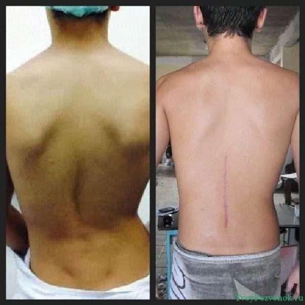 Пациент до операции и после