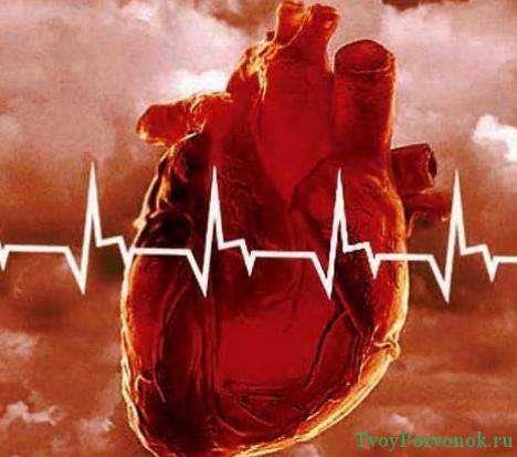 Экстрасистолия - это сокращение сердца чаще чем необходимо