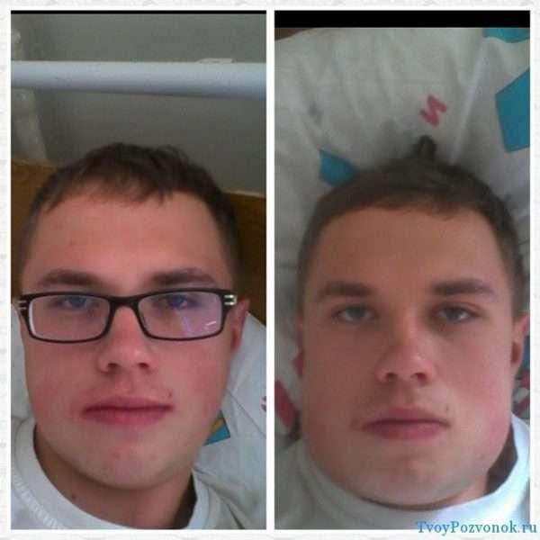 Отёк лица у молодого человека