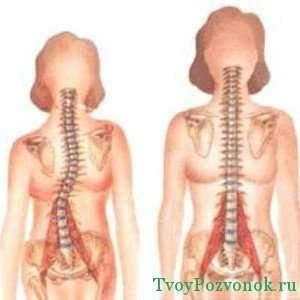 Спина с правосторонним сколиозом и здоровая спина