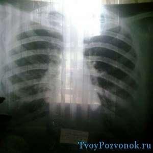 Снимок рентгена позвоночника