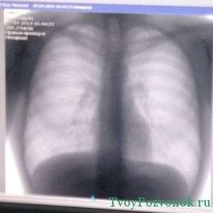 На сделанном снимке выраженный сколиоз грудного отдела