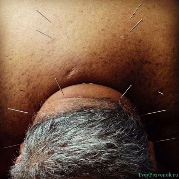 Мужчина на сеансе рефлексотерапии