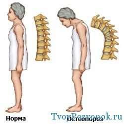 Сутулость - признак остеопороза