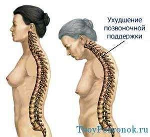 Ухудшение позвоночной поддержки - влияние остеопороза